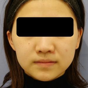小顔治療(バッカルファット除去)のご紹介