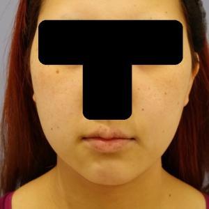 小顔治療(脂肪吸引)のご紹介