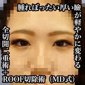 取る脂肪を間違えなければ、腫れぼったい厚い瞼が軽やかに変わる ~全切開二重術+ROOF切除術~