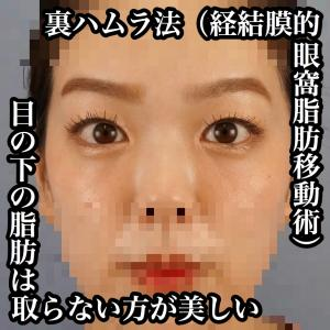 目の下のクマ(脂肪)は取らない方が美しい ~裏ハムラ法・経結膜的眼窩脂肪移動(再配置)術~