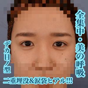 全集中・美の呼吸 デカ目ノ型 グランドループ二重埋没&涙袋ヒアル!!!