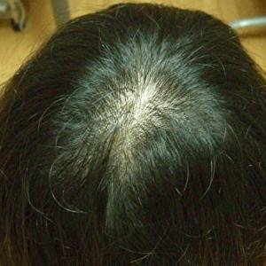 体の健康度に問題があった女性の薄毛の話
