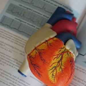 洞性頻脈の原因は「HI EDGE AP」で覚える!