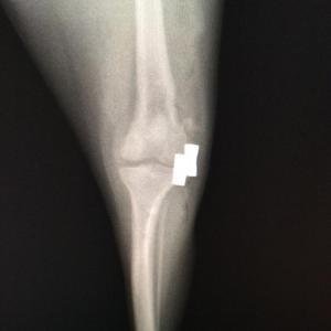 膝蓋骨脱臼(グレード4)