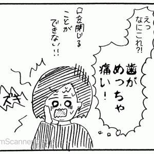 (450) 突然の虫歯