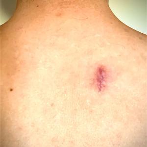 【閲覧注意】アメリカで粉瘤の切除手術を受ける。その3