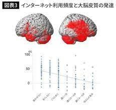 脳科学者が警告「学校の一人一台端末導入で、日本の子どもはバカになる」 勉強にICTを使うのは逆効果