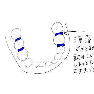 【歯科矯正】下の装置