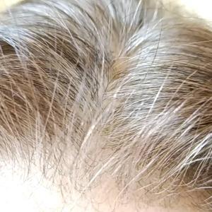 白髪・薄毛お悩み3アイテムを使ってみた感想