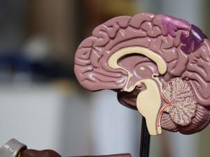 【寝たきりになる病気第1位】脳血管疾患! 予防は減塩・肥満防止