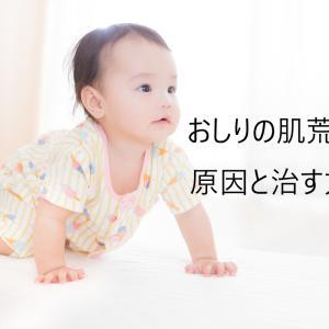 【育児】赤ちゃんのおしりの肌荒れの原因と治す方法