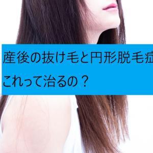 【産後】産後の抜け毛と円形脱毛症!これって治るの?
