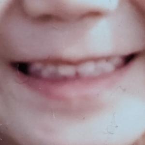 【続】矯正器具を使わずに子どもの歯並びをなおしちゃった!