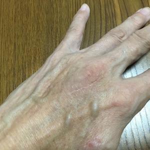 左中指伸筋腱の手術から2年