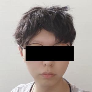 円形脱毛症から6カ月経った結果報告!!