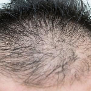 はげが原因で「しにたい」と思ったら必見!禿げを治す方法