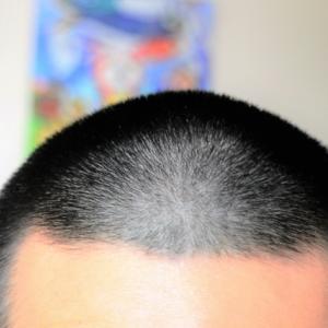 薄毛必見!フサフサの毛髪が育たない原因は何か?