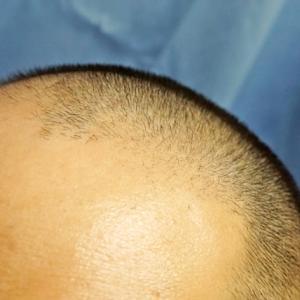 薄毛・ハゲは心と体の健康状態が悪いのが原因|毛髪を増やす方法