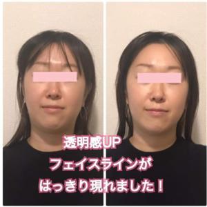 にっくき二重アゴ、ダイエットせずに顔痩せする方法