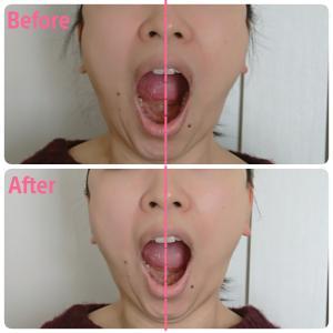 【顎のずれ】【顔の広がり】~Before&After~