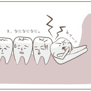 抜歯との関係性。