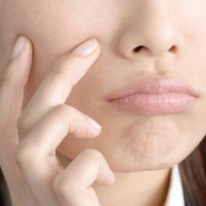 過剰な皮脂分泌による肌トラブルに要注意!