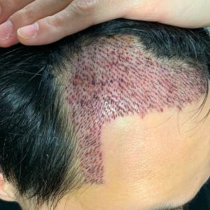 3ヶ月経過 植毛部を隠す「対策」について少し話します。