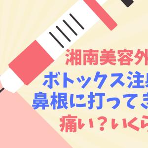 【湘南美容外科】鼻根ボトックス注射の体験レポ【痛い?効果は?】