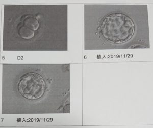 卵子提供体験談(大新生殖中心)~胚移植~