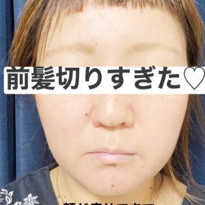 【朗報】顔が痩せてきました!!!!!!