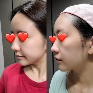 脂肪移植記録③【before&after】