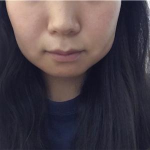 【その5】親知らず抜歯レポ〜2日目〜
