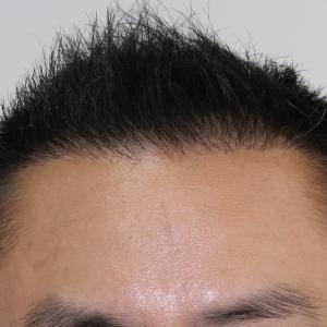 自毛植毛の経過紹介|スマートFUE|生え際900グラフト|手術前→6か月後