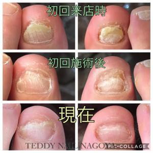 爪水虫?爪白癬?白濁した爪