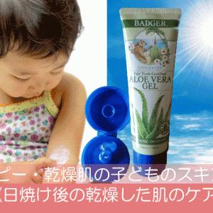 アトピー・乾燥肌の子どものスキンケア《日焼け後の乾燥した肌のケア》