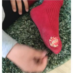 靴下の穴は直せる❗️ダーニング