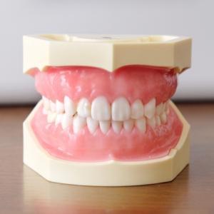 娘の歯科矯正