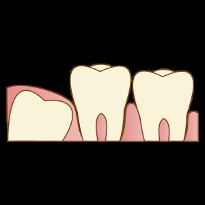 親知らず(完全埋伏智歯)を口腔外科で抜歯しました。