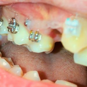上の奥歯に矯正器具がつきました。まずは八重歯を輪ゴムで奥に引っ張ります。