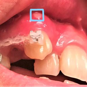 歯列矯正4日目 さっそく口内炎ができる