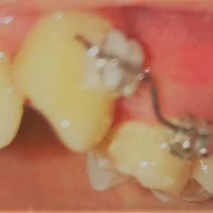 歯列矯正2回目の調整 ついにワイヤーを装着