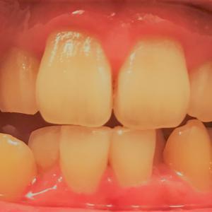 歯列矯正3回目の調整 抜歯もしたよ