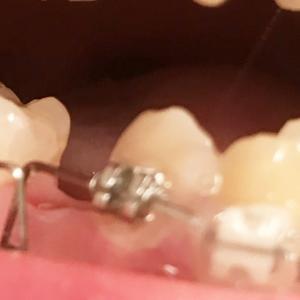 歯列矯正4回目の調整 下の歯にループワイヤーが装着