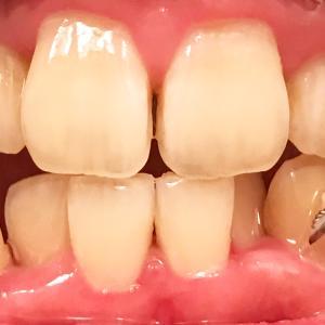 歯列矯正5回目の調整