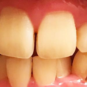 歯列矯正7回目の調整 ついに下前歯にワイヤー初装着!