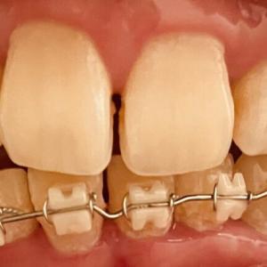 歯列矯正7回目の調整