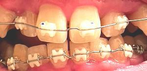 歯列矯正9回目の調整 上前歯にワイヤーが装着