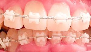 歯列矯正13回目の調整 初めて顎間ゴムを装着