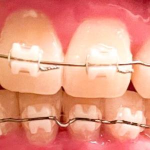 歯列矯正14回目の調整