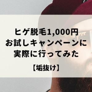 ヒゲ脱毛1,000円お試しキャンペーンに実際に行ってみた【垢抜け】